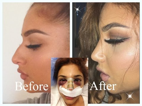NOSE JOB EXPERIENCE - Doctor, Price, Pain, Recovery etc.