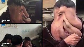 China's Elephant Man : Huang Chuncai, 39 : World's Biggest Facial Tumour