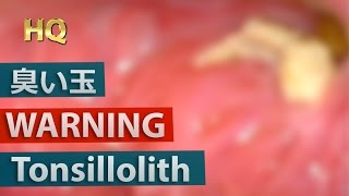 [WARNING] Big Tonsillolith(Tonsil stones) Removal Close up | 巨大膿栓(臭い玉)を除去