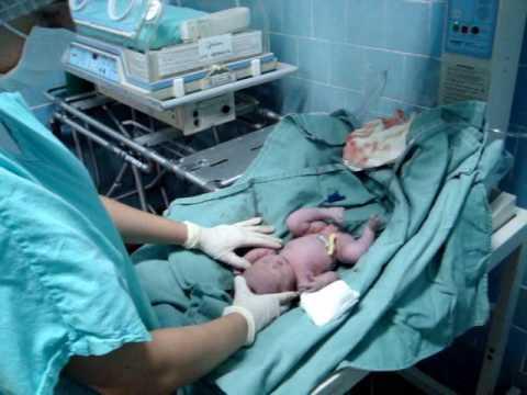 Nascimento da Mariana Parto Cesariana