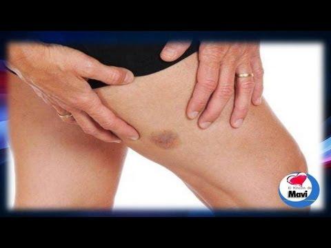 Como quitar un moreton o hematoma Remedios caseros y naturales