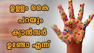 Cancer Symptoms Apear In Your Soul Of Hand | Oneindia Malayalam