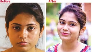 How To Remove Sun Tan Instantly | सन टेन कैसे हटायें | Skin whitening home remedy 100% effective
