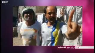أنا الشاهد: نعرض معاناة النازحين اليمنيين في مخيم السلام بمحافظة إب