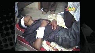 35 injured in university clash