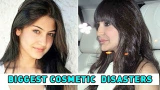 Bollywood's Biggest Cosmetic Surgery Disasters
