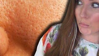 GROBE POREN | Empfindliche Haut | URSACHEN und EINFACHE HILFE | BEAUTY TABU