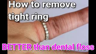 Remove STUCK ring!!