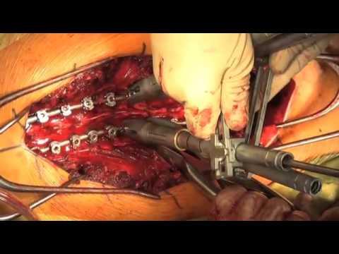 Cirugía de corrección de deformidad de columna escoliosis idiopática
