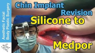 Chin Implant Revision from Silicone to Medpor. See the old implant - Live Plastic Surgery Video
