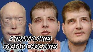 5 Transplantes Faciais Chocantes (que deram muito certo)