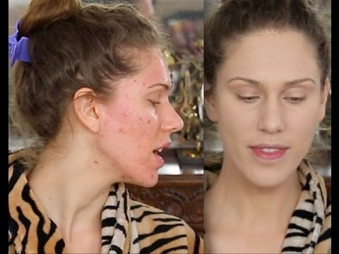 Acne Scar Foundation Routine - Full Coverage Flawless Makeup Tutorial - Pores & Ice Pick Scarring