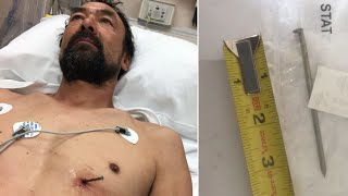 Man Shot Nail Into His Heart Then Calmly Drove Himself 12 Miles to Hospital