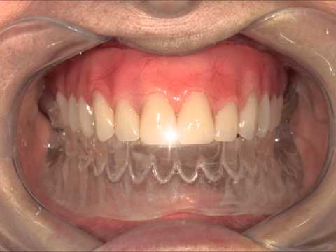 Prótese sobre implantes com carga imediata tipo protocolo branemark blosodontologia .br