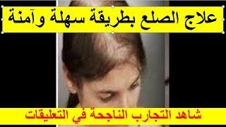 التخلص من الصلع الأمامي | علاج الصلع الوراثي بطريقة آمنة وسهلة | بديل زراعة الشعر
