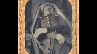 Rare Civil War Postmortem Photographs of Dead Soldiers (1860's)