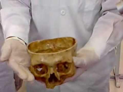 Anatomía de huesos Parte 1 Prof. Jorge Fernández