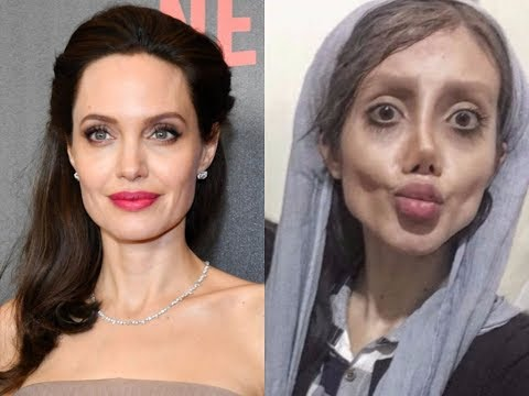 Xxx Mp4 19 Year Old Girl Got 50 Surgeries To Look Like Angelina Jolie 3gp Sex