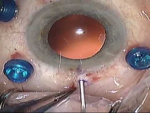 Intrascleral Sutureless Foldable IOL Fixation