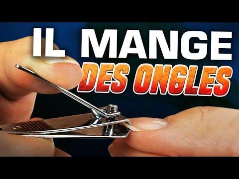 Xxx Mp4 IL MANGE DES ONGLES DE PIEDS 😩😱 Marion Et Anne So 3gp Sex