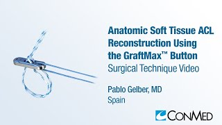 Dr. Pablo Gelber - Anatomic Soft Tissue ACL Reconstruction Using GraftMax™ Button - CONMED Technique