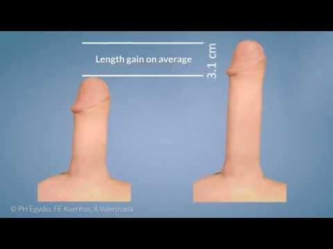 Xxx Mp4 MoST For Penile Prosthesis Insertion Penile Length And Girth Preservation 3gp Sex