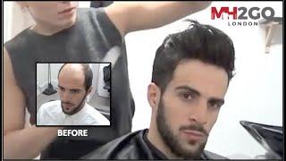 Hair Replacement FITTING VIDEO (Sam) – Hair loss, Baldness, Hair Wigs, Hair Toupees, Hair pieces