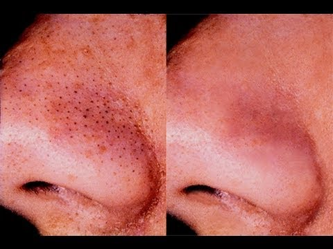 HOW TO GET RID OF BLACKHEADS!!!!