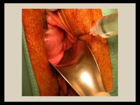 Outpatient Hysteroscopy