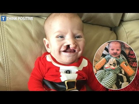 Mom Uplifted By Act Of Kindness After Hurtful Comment About Son's Cleft Palate