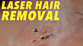 Science of Laser Hair Removal in SLOW MOTION