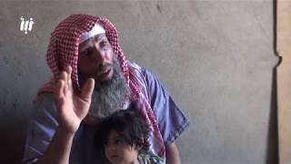 """قصة أبو محمد في مخيمات النزوح.. """"أتمنى الموت أحياناً من شدة الألم"""""""