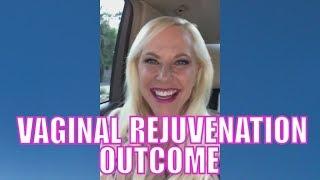 My Vaginal Rejuvenation Outcome