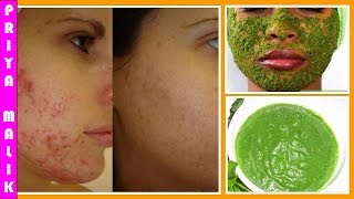 How To Get Rid Of Acne Naturally || Neem Face Pack || Neem Acne Treatment