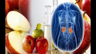 سوف تعشق خل التفاح بعد معرفة هذه الطرق لاستخدامه وهذه فوائد خل التفاح التي أثبتها العلم حديثا !