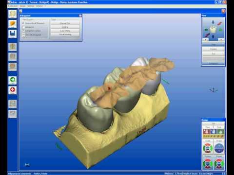 Xxx Mp4 Digital Tooth Design CAD CAM Dentistry 3gp Sex