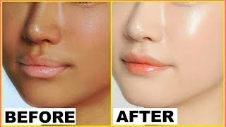 How to Reduce Acne Scars, Discoloration, Uneven skin tone I Home Remedy for Fair Skin