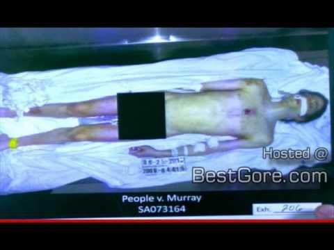 Autopsia de Michael Jackson Realidades sobre este mundo