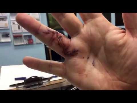 Xxx Mp4 Hand After Surgery 3gp Sex