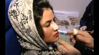 Rhinoplasty Iran - Real story of nose surgery in Iran  +98 912 311 64 33