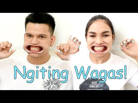 The Best Ang Veneers Sa Esthetique Smiles Dental