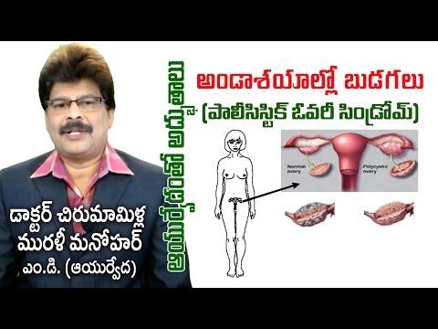 Poly Cystic Ovary Disease | PCOS | Prof. Dr. Murali Manohar Chirumamilla, M.D. (Ayurveda)