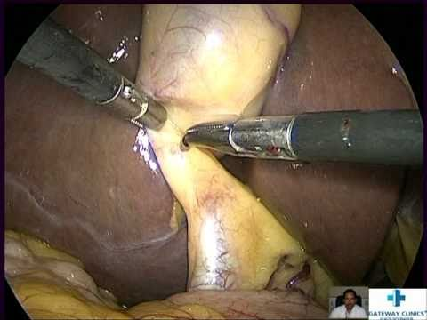 Xxx Mp4 Laparoscopic Cholecystectomy 3gp Sex