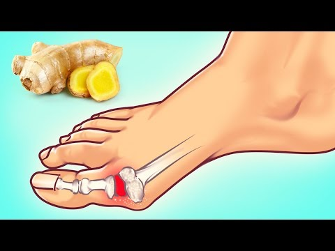 Xxx Mp4 10 Expert Tips On How To Fight Gout Attack 3gp Sex