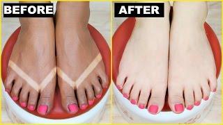 How To Remove SunTan (Effective + Instant) - Skin Brightening | PrettyPriyaTV