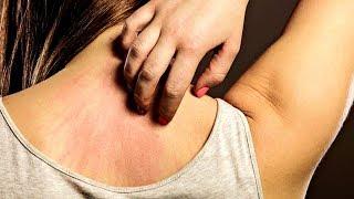 8علامات تدلل على الإصابة بالسرطان