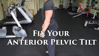 The BEST Way To FIX An Anterior Pelvic Tilt | W/ Lumbar Hyperlordosis