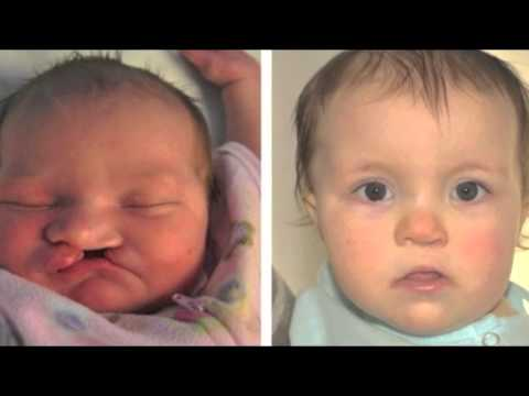 Cleft Lip, Cleft Palate: Before and after pictures