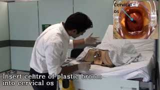 Speculum exam and cervical smear