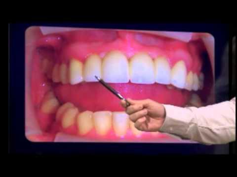 Coroas de Porcelana zircônia sobre Implante Dentário e Dente
